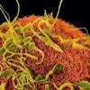 En amarillo los espermatozoides intentando fecundar el óvulo (en naranja)