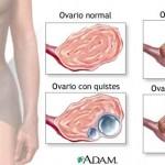Por qué se producen los quistes en los ovarios
