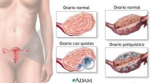 quistes ovaricos